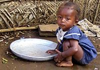 ibc_comoros_malnutrition-ch